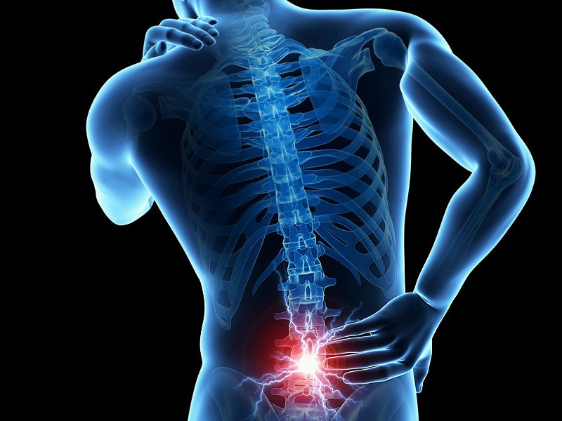 Low Back Pain A Universal Human Experience